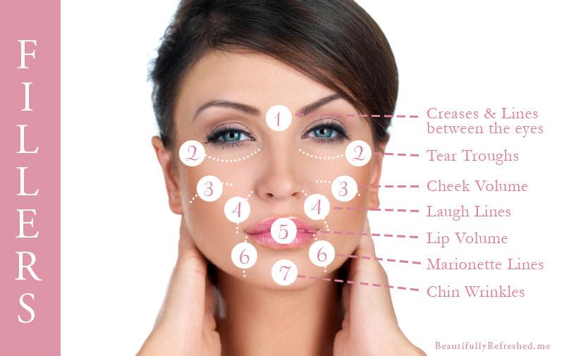 common-dermal-filler-areas